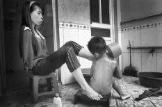 Kara sekas: skumjš stāsts par meiteni bez rokām