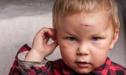 С каждым годом в больницы Латвии попадает все больше детей с травмами