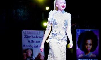 Foto: Kronēta skaistākā albīnu meitene Zimbabvē