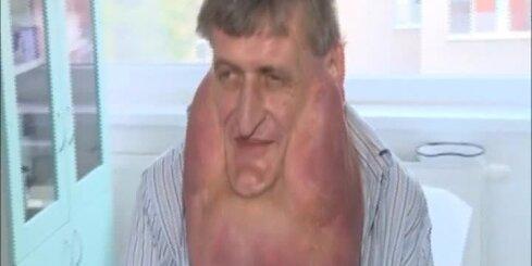 Slovākijā vīrietim izoperē gigantisku augoni