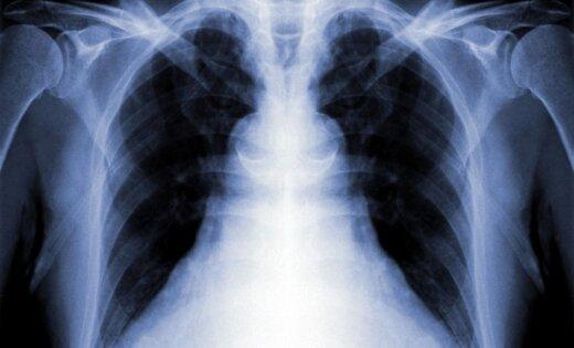 В течение года в Латвии регистрируется более 600 случаев туберкулеза