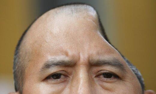 Vīrietis kautiņā zaudē daļu galvaskausa