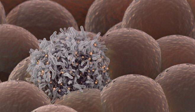 Меланома крупным планом: факторы риска, проверка и лечение