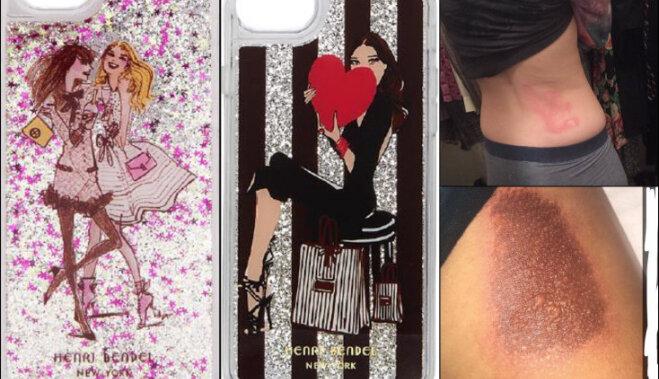 Чехлы для iPhone с глиттером отзывают с рынка; 24 человека получили химические ожоги