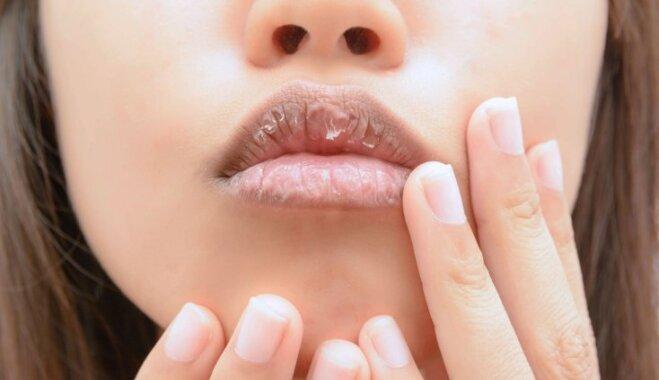 Seši soļi cīņā ar sasprēgājušām lūpām