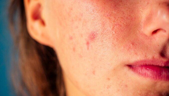 Estētikas bieds – akne. Izpausmes, ārstēšana un izplatītākie mīti