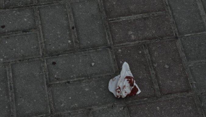 В Вецриге избит иностранец: пострадавшего пришлось госпитализировать