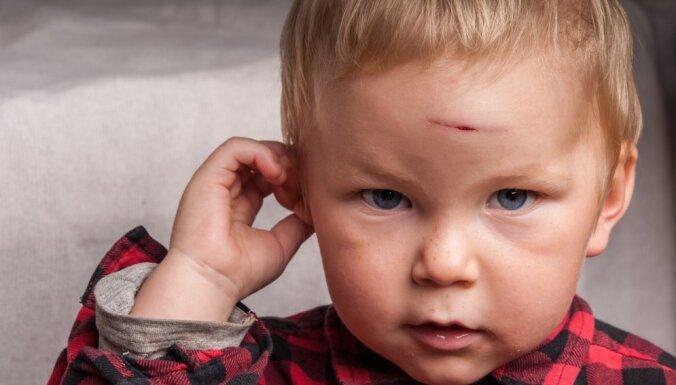 Что важно знать о детском травматизме: хирург отвечает на 6 вопросов