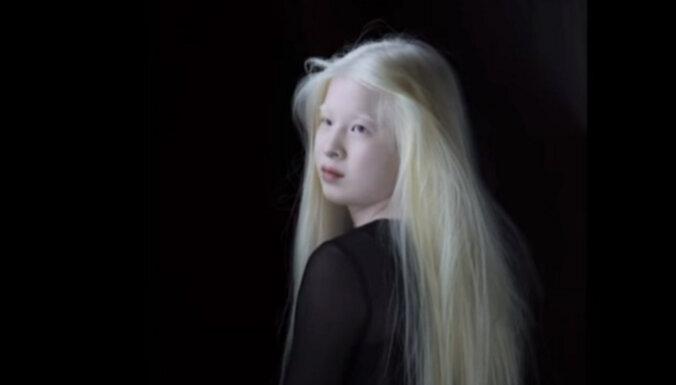 Как девочка с альбинизмом из китайского приюта стала моделью для Vogue