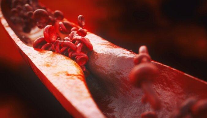 Ko par holesterīnu svarīgi zināt ikvienam, lai mazinātu sirds slimību risku
