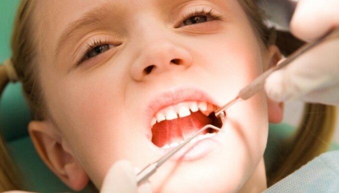 Noderīgi fakti, kas jāzina par zobu kariesu