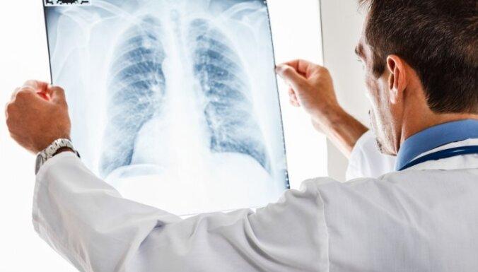 HOPS – plaušu slimība, kas piezogas nemanot