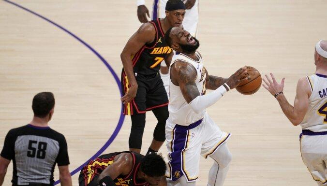 Džeimss sastiepj potīti un nenoteiktu laiku nevarēs palīdzēt 'Lakers' komandai