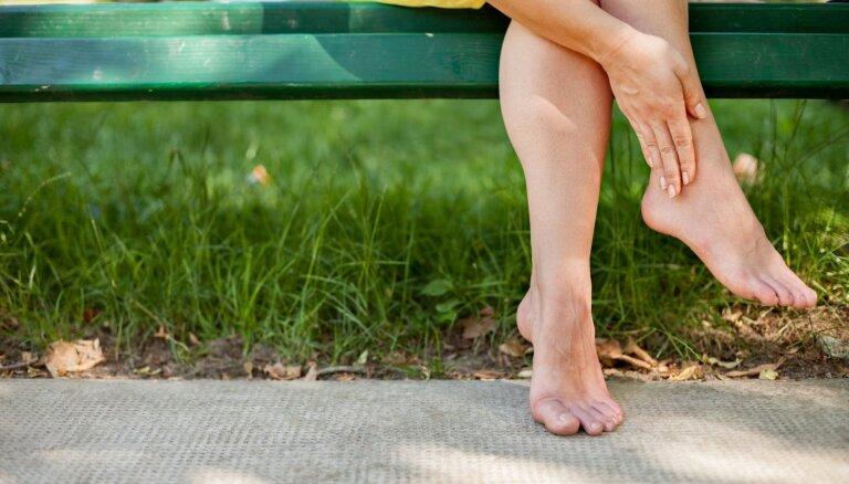 Kāpēc karstumā pampst kājas un kā ar to cīnīties