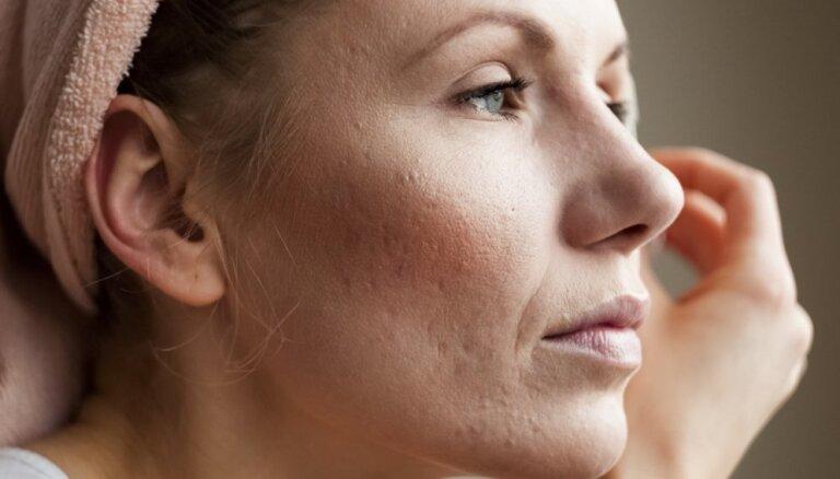 Pieci atjautīgi veidi, kā likt sejas porām izskatīties nemanāmākām