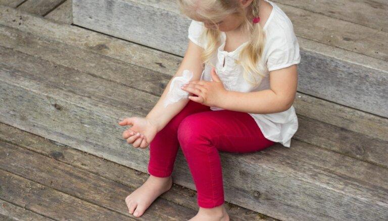 Bērnam spēcīgi niez āda – vai neirodermatīta pazīme?