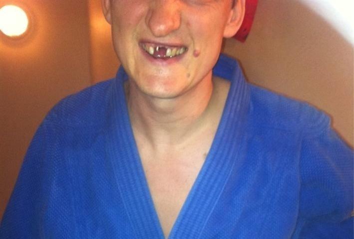 Andris Kivičs un citas slavenības ar dīvainiem zobiem